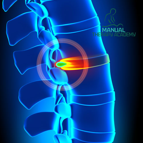 Manual Therapy Approach for Herniated Disc